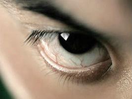 Основные причины покраснения глаз? krasn-glaz