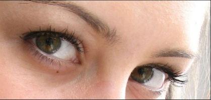 Основные причины покраснения глаз? krasn-glaz2