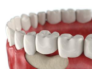 Преимущества базальной имплантации зубов bazalniy-protez