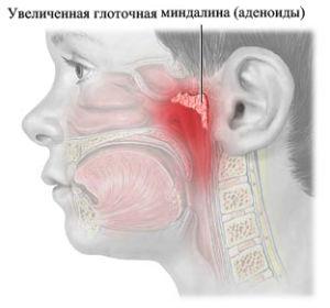 adenoidy-u-detey