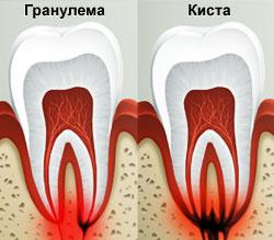 Что такое гранулема? Лечение гранулемы корня зуба granulema