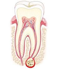 Что такое гранулема? Лечение гранулемы корня зуба granulema3