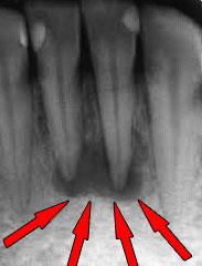 Что такое гранулема? Лечение гранулемы корня зуба granulema4