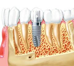 Осложнения после имплантации зуба