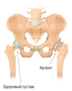 Профилактика и лечение артрита тазобедренного сустава у детей