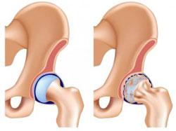 Симптомы и лечение артроза 1 степени