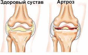 Симптомы и лечение артроза 1 степени artroz-1st4
