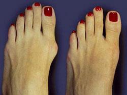 Эффективное лечение артроза пальцев ног