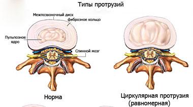 Циркулярные протрузии межпозвонковых дисков