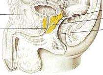 Как проводится лечение камней в простате?