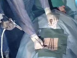 Что представляет из себя удаление грыжи позвоночника? operacija-grizh3