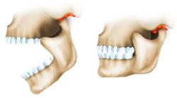 artrit-cheljustno-licev-sustava2