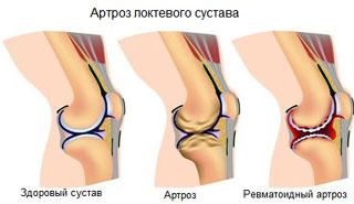 artroz-loktevogo-sustava