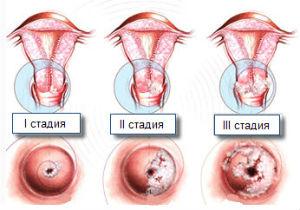 Методы эффективного лечения дисплазии шейки матки lechenie-displazii