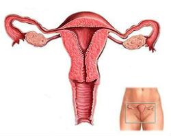 lechenie-endometrioza2