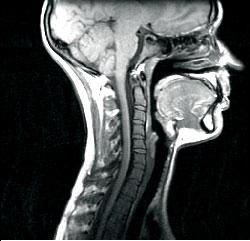 МРТ-снимок шейного отдела позвоночника
