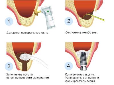 Открытый и закрытый синус-лифтинг sinus-lifting