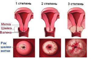 Жизнь после рака шейки матки stadii-raka