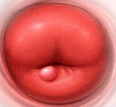 Эффективное лечение кисточек на шейке матки udalenie-kisty-sheyki-matki3