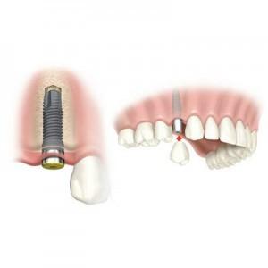 bazalnaia-implantatciia-zubov