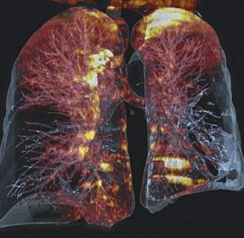 Снимок легких на КТ