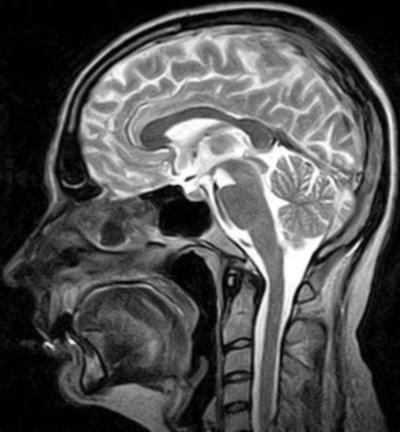 Где лучше всего сделать МРТ в Киеве? meddiagnostika-v-kieve