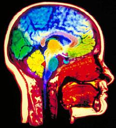 Кт головного мозга с контрастом что это