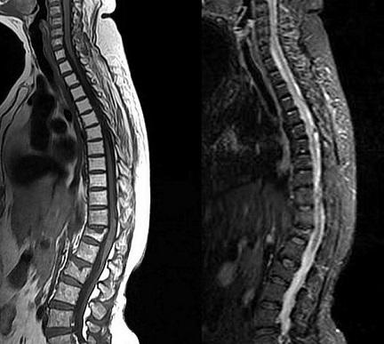 МРТ-снимок позвоночного столба сбоку