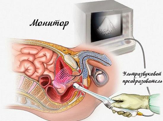 Проведение трансректального УЗИ предстательной железы