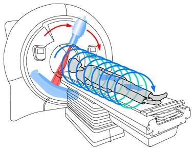 Схематическое изображение процедуры МСКТ
