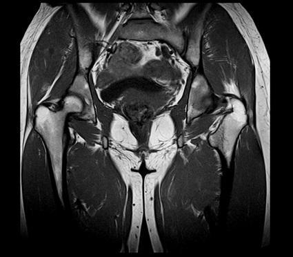 МРТ-снимок малого таза