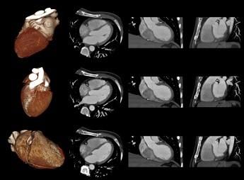 Снимок сердца на МРТ