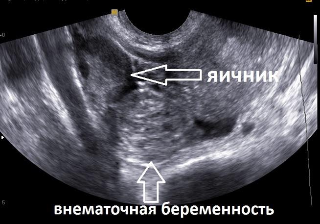 УЗИ снимок внематочной беременности