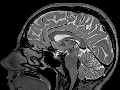 Как и зачем проводится МРТ головного мозга? snimok_mrt_mozga
