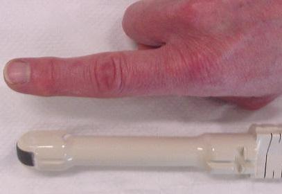 Сравнение размеров трансректального датчика с пальцем мужчины