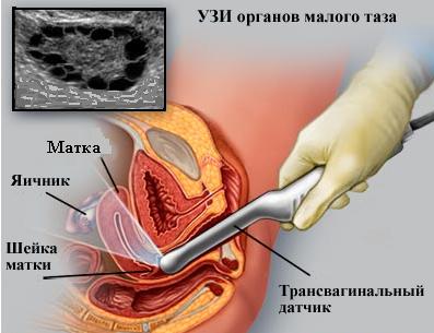 УЗИ яичников через влагалище