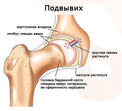 Для чего нужно УЗИ тазобедренных суставов у грудничков? vrozhdennyj-vyvih-bedra-uzi
