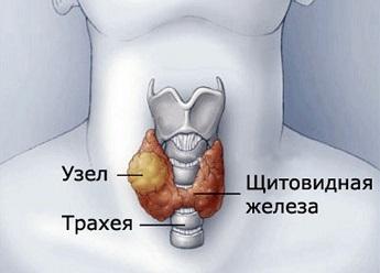 Расположение щитовидной железы