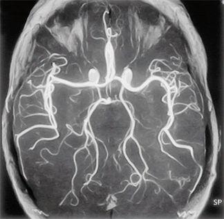 МРТ снимок сосудов головного мозга
