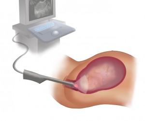 Фолликулометрия с помощью вагинального датчика