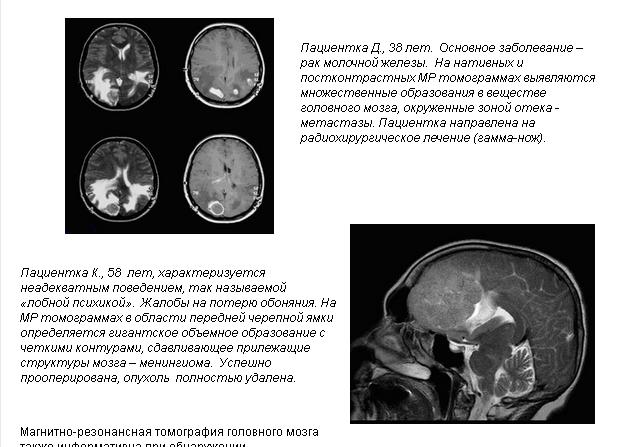 """МРТ головного мозга в ЛЦБ """"МИБС"""" в городе Уфа"""