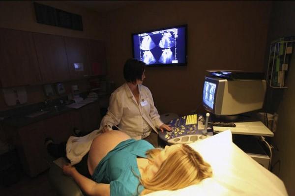 Проведение доплер исследования при беременности