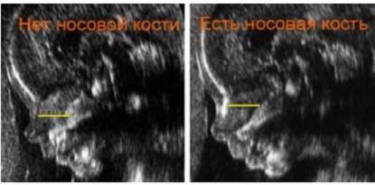 Определяется ли синдром Дауна по УЗИ? net-nosovoy-kosti-na-uzi-1