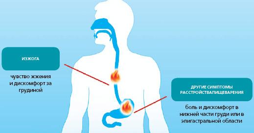 Ощущения при изжоге (эзофагите)
