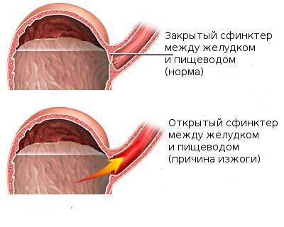Механизм развития изжоги