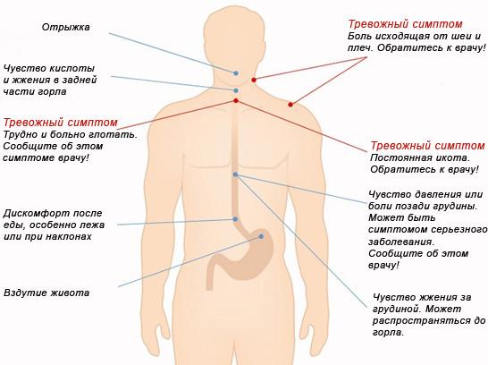 Таблетки от изжоги: обзор, плюсы и минусы, побочные эффекты Simptomy_izzhogi