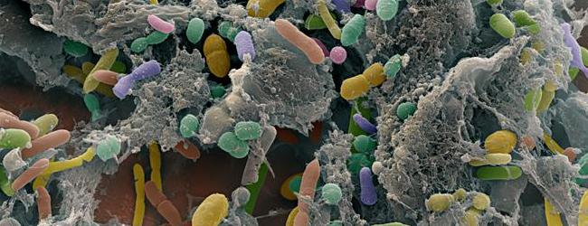 Наличие патогенных бактерий в кале — частый признак дисбактериоза