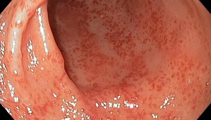 Атрофический гастрит: причины, симптомы, лечение atrophiya_pri_gastrite