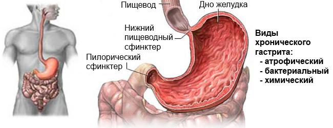 Виды хронического гастрита