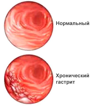 Нормальная слизистая желудка и слизистая при хроническом гастрите